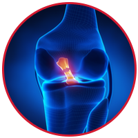 Anterior Cruciate Ligament Injury (ACL)