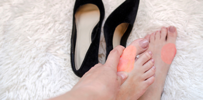 Bunions: How to stop those frustrating bumps on the sides of your feet from getting worse!
