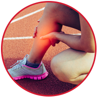 Compartment Syndrome (Acute and Chronic Exertional Compartment Syndrome)