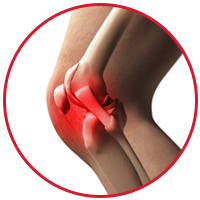 Lateral Collateral Ligament Injury (LCL)