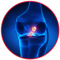 Posterior Cruciate Ligament Injury (PCL)