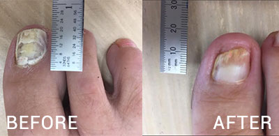 Lunula Laser - Before & 6 Months After