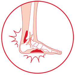 Foot Pain / Ankle Pain