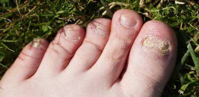 Case Study: Fungal Toenail Infection Finally Gone Using Laser Treatment