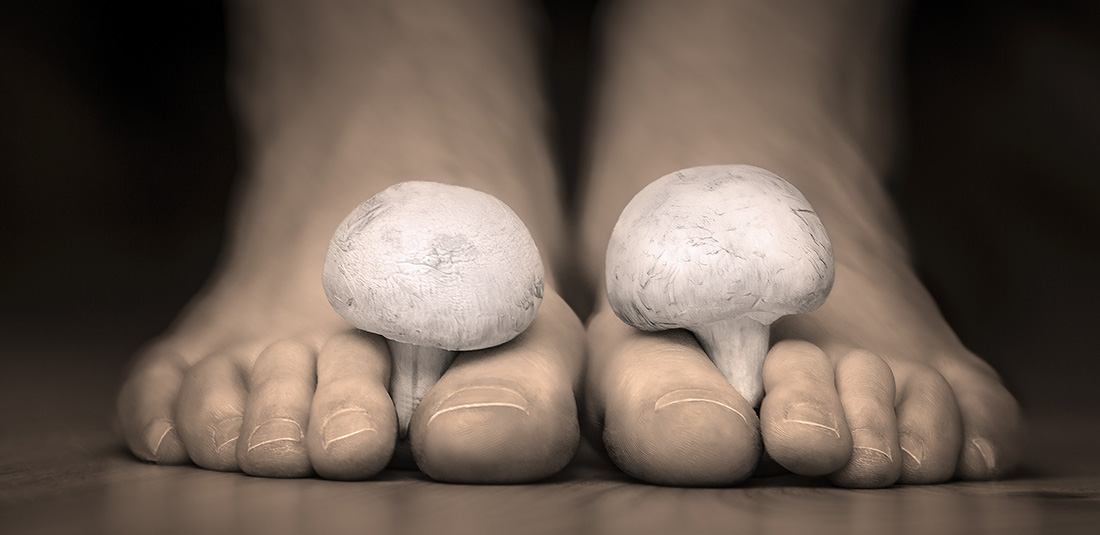 Struggling to Beat Your Fungal Nail Infection? The Podiatrist ...